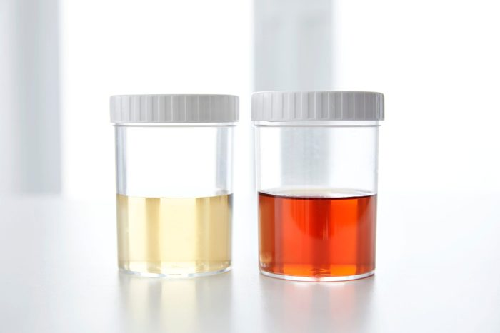 urine colour chart   Blood In Human Urine In Sample Pot