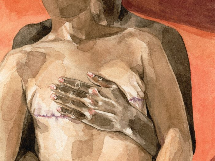 cancer sex life   sex after a cancer diagnosis   illustration of someone embracing their partner